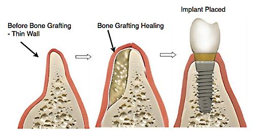 ADC-bone-grafting-dental-ridge-augment-Web