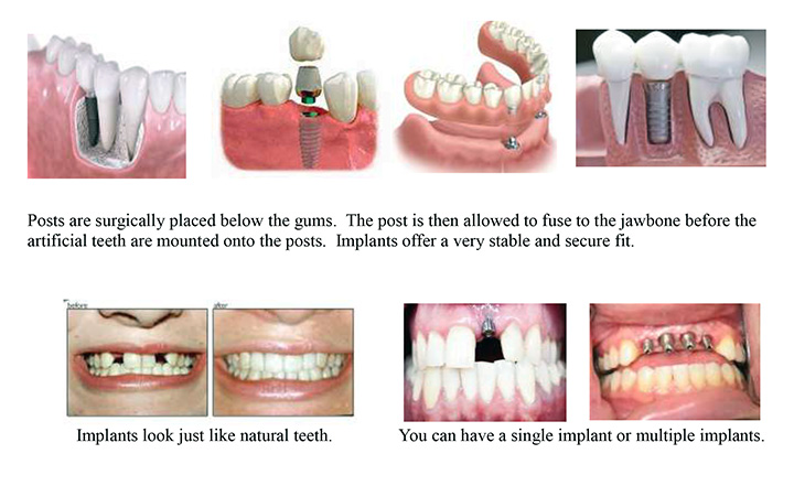 Oral Care Tips for IMPLANTS